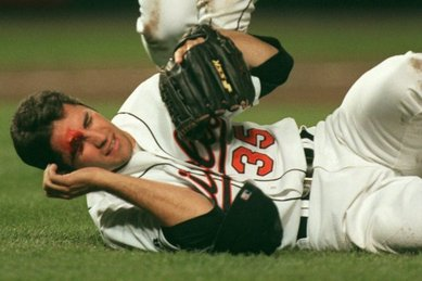 Most common shoulder injury in baseball